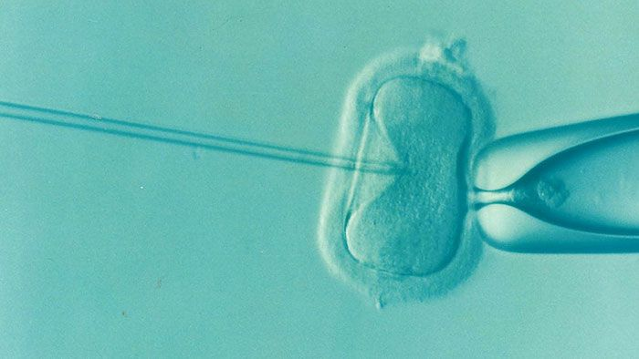کمبود اسپرم - فناوری کمک باروری ART